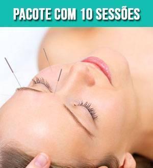 acupuntura-pacote-com-10-sessoes