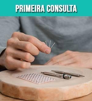 acupuntura-primeira-consulta