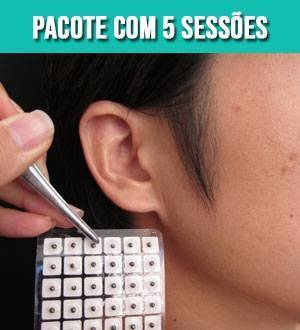 auriculoterapia--pacote-com-5-sessoes